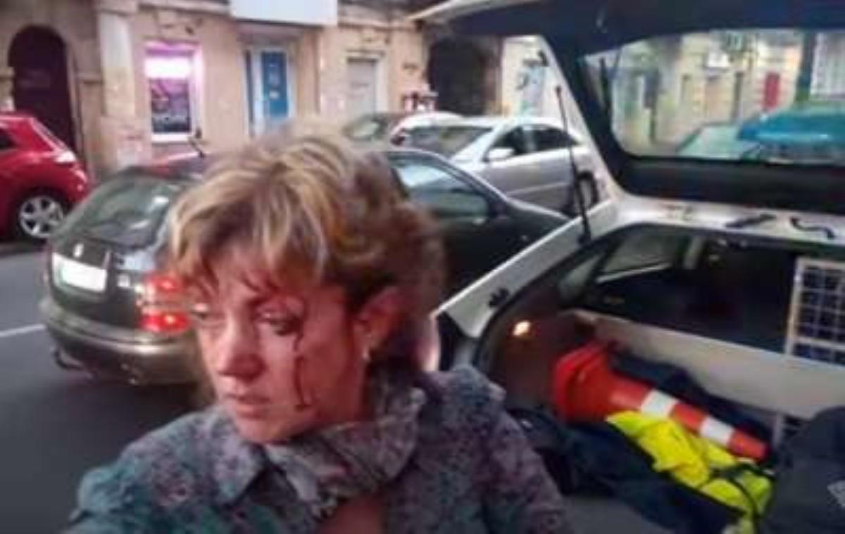 ВОдессе неизвестный безумно ударил поголове активистку