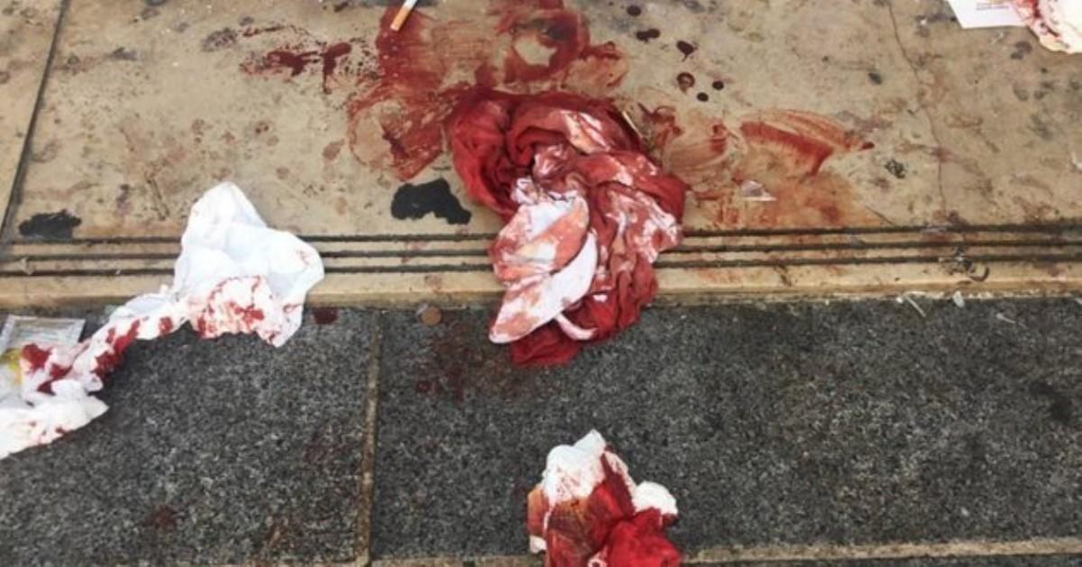 Нападение истрельба. ВКиеве неизвестный смолотком набросился натоп-менеджера