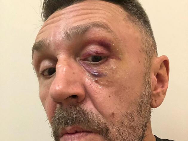 Поклонник избил Сергея Шнурова из-за очистки аккаунта в Инстаграм